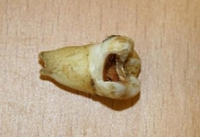 John Lennon's Tooth Sells for 31k at Auction